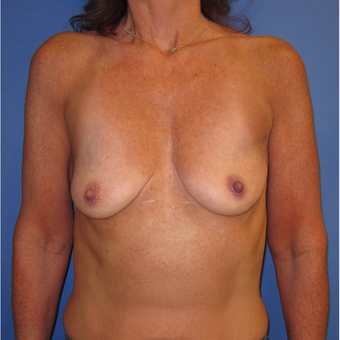 45-54 year old woman treated with Breast Lift with Implants (339cc) before 3760031