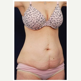 45-54 year old woman treated with Mini Tummy Tuck before 1567303