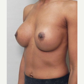 Breast Implants after 3241614