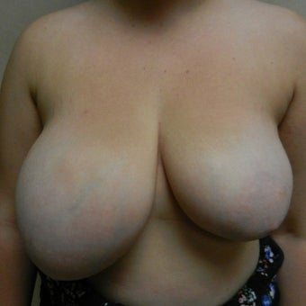 18-24 year old woman treated with Breast Reduction before 2550286