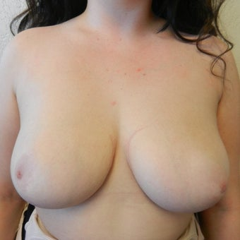 18-24 year old woman treated with Breast Reduction after 2550286