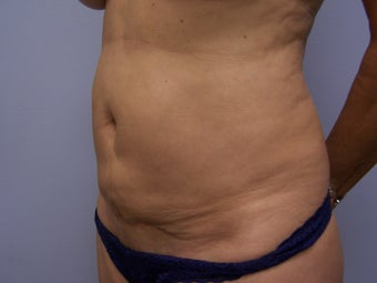 Revision Tummy Tuck with abdominal  liposuction 980199