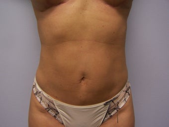 Revision Tummy Tuck with abdominal  liposuction after 980199