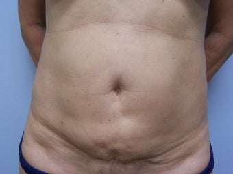 Revision Tummy Tuck with abdominal  liposuction before 980199