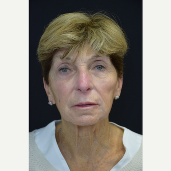 65-74 year old woman treated with Ultherapy after 2996358