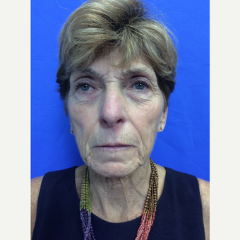 65-74 year old woman treated with Ultherapy before 2996358
