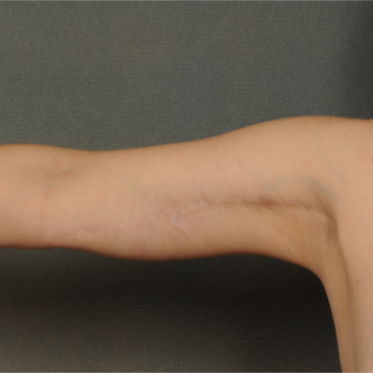 35-44 year old woman treated with Arm Lift after 3709661