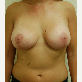 25-34 year old woman treated with Breast Lift after 3310945