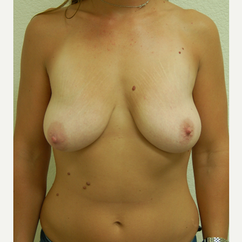 25-34 year old woman treated with Breast Lift before 3310945