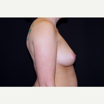 25-34 year old woman treated with Breast Augmentation before 3741745