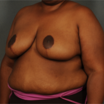 35-44 year old woman treated with Breast Reduction after 3103710