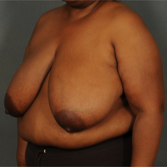 35-44 year old woman treated with Breast Reduction before 3103710