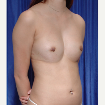 18-24 year old woman treated with Breast Fat Transfer after 3500520