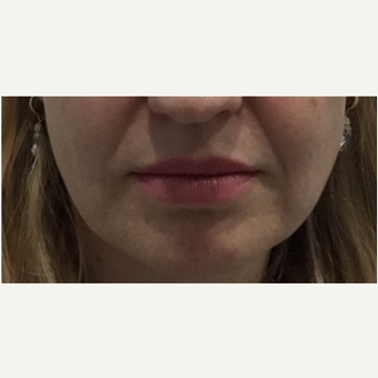 35-44 year old woman treated with Juvederm before 3331404