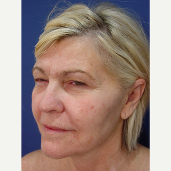 55-64 year old woman treated with Non Surgical Face Lift before 2902791