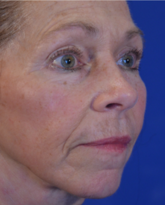 63 year old woman post Facelift after 3743999