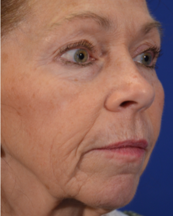 63 year old woman post Facelift before 3743999