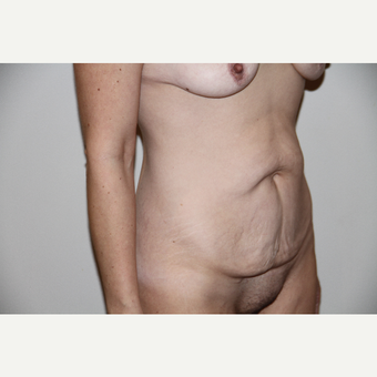 40 year old woman treated with Tummy Tuck before 3493632
