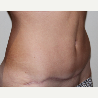 40 year old woman treated with Tummy Tuck after 3493632