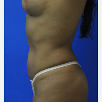 35-44 year old woman treated with Vaser Liposuction after 3482830