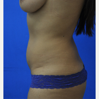 35-44 year old woman treated with Vaser Liposuction before 3482830