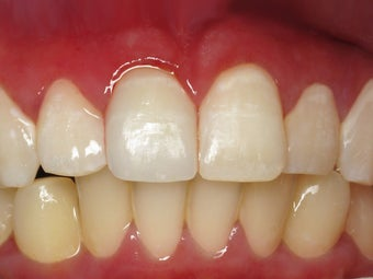 Porcelain Crown to Fix a Broken Tooth Before & After Photo after 996263