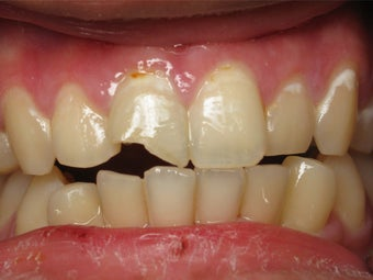 Porcelain Crown to Fix a Broken Tooth Before & After Photo before 996263