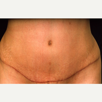 35-44 year old woman treated with Tummy Tuck after 3072057