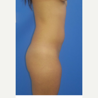 25-34 year old woman treated with Brazilian Butt Lift before 3124211