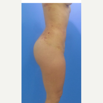 25-34 year old woman treated with Brazilian Butt Lift after 3124211