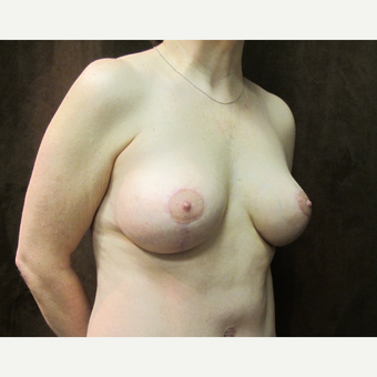 45-54 year old woman treated with Breast Lift with Implants after 3036157