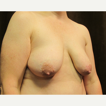 45-54 year old woman treated with Breast Lift with Implants before 3036157