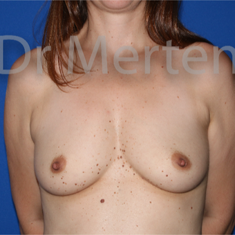 35-44 year old woman treated with Breast Augmentation before 3552312