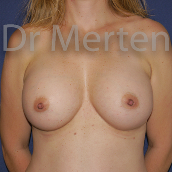 35-44 year old woman treated with Breast Augmentation after 3552312