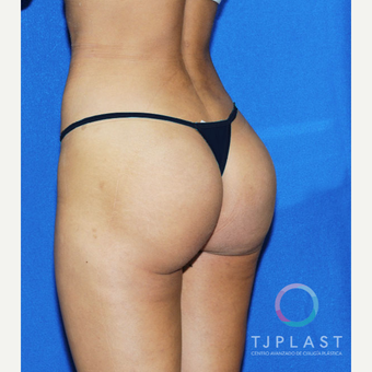 25-34 year old woman treated with Butt Implants after 3765234