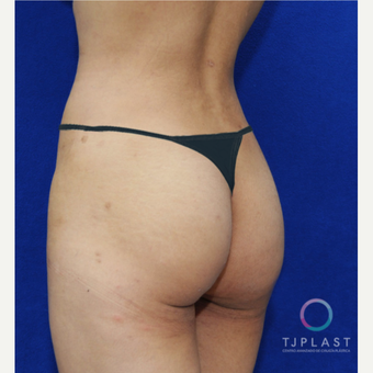 25-34 year old woman treated with Butt Implants before 3765234