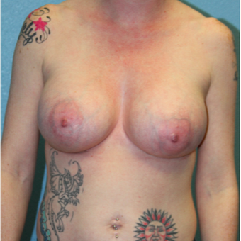 25-34 year old woman treated with Breast Augmentation after 3215215