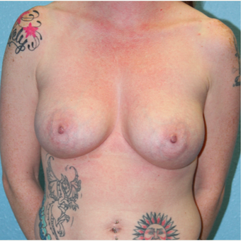 25-34 year old woman treated with Breast Augmentation before 3215215