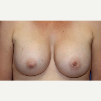 47 year old woman treated with a breast augmentation using Ideal Implants after 3076219