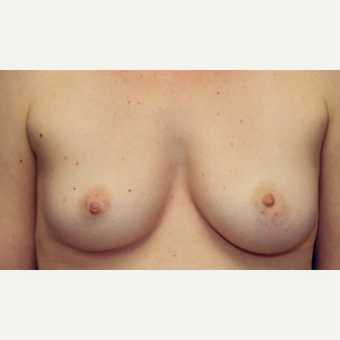 47 year old woman treated with a breast augmentation using Ideal Implants before 3076219