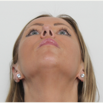 35-44 year old woman treated with Rhinoplasty before 3406145