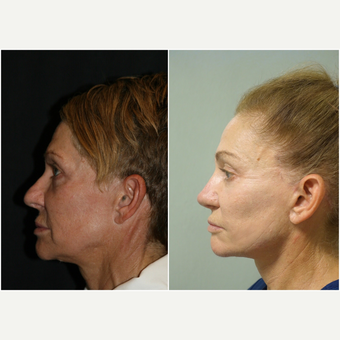 55-64 year old woman treated with Facelift before 3847175
