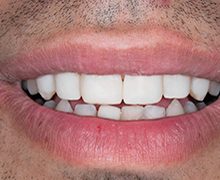 35-44 year old man treated with Braces