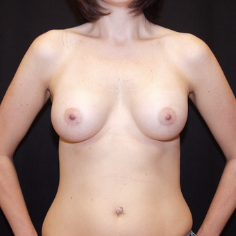 35-44 year old woman treated with Breast Implants after 3602929
