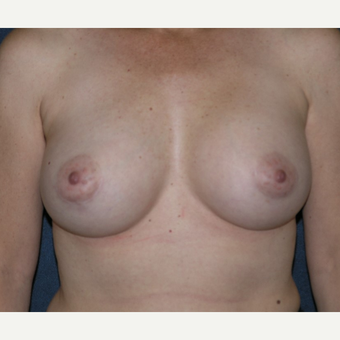 45-54 year old woman treated with Breast Implants after 3455532