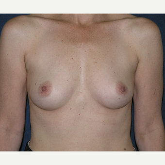 45-54 year old woman treated with Breast Implants before 3455532