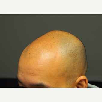 25-34 year old man treated with Hair Loss Treatment Scalp MicroPigmentation SMP before 1967968