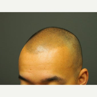 25-34 year old man treated with Hair Loss Treatment Scalp MicroPigmentation SMP after 1967968
