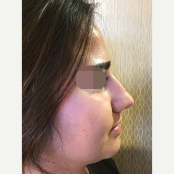35-44 year old woman treated with Rhinoplasty before 3813370