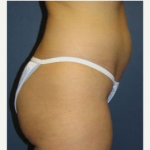 Tummy Tuck before 3720523